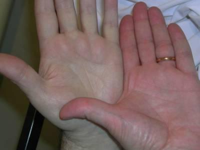 Ладонь здорового человека и больного анемией