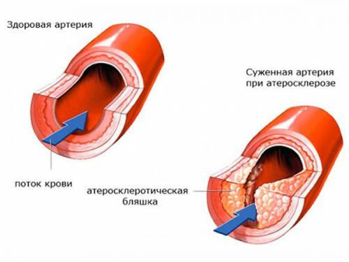 Поражение артерии атеросклерозом