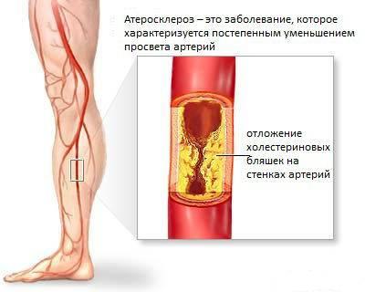 Склероз аорты сердца лечение народными средствами