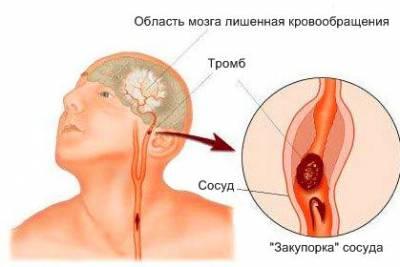 Тромбоз сонной артерии