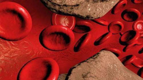 Атеросклеротическая бляшка внутри сосуда