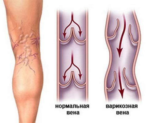 Лечение варикоза нижних конечностей