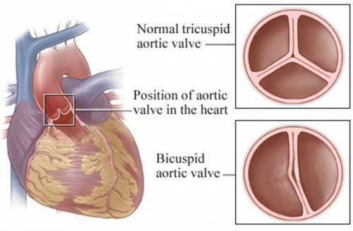 Варианты клапанов аорты