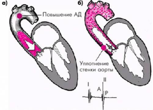 Уплотнение корня аорты сердца