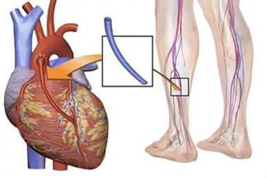 Схема аорто-коронарного шунтирования