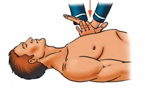 Асистолия сердца: что это такое, неотложная помощь, симптомы и лечение