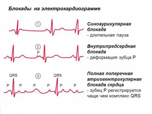Что такое блокада сердца и как лечить