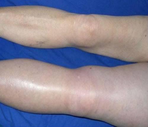Тромбоз сосудов ног