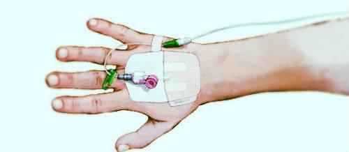 Катетеризация вен на руках