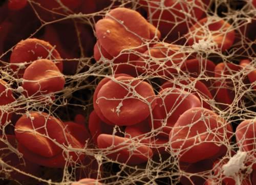 Формирование кровяного тромба