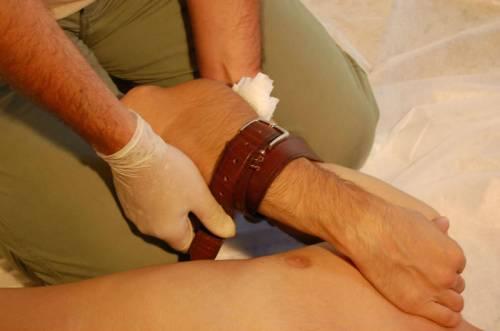 Временная остановка кровотечения