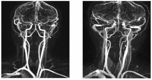 Ангиография позвоночных артерий