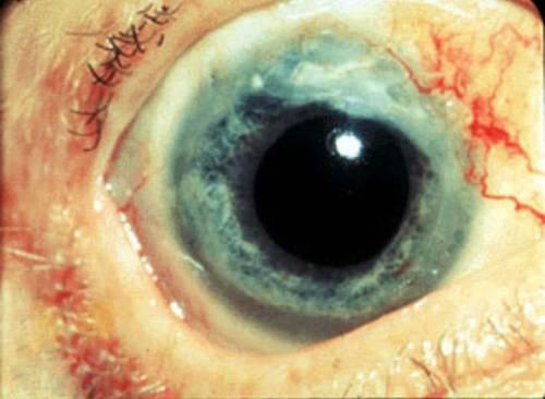 Поражение глаз при гранулематозе Вегенера