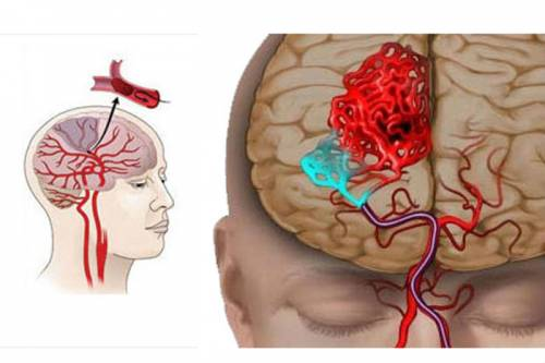 Ишемический инсульт прогноз для жизни