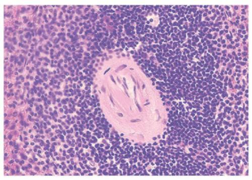 Измененные миофибриллы сердца