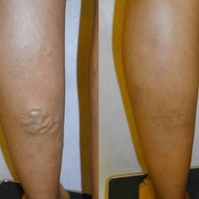 Результат лазерной коагуляции вен ног