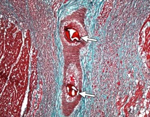 Ткань миокарда