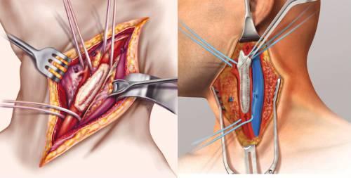 Операция при закупорке сонной артерии