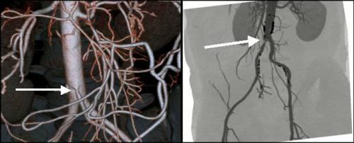 Окклюзия мезентериальной артерии