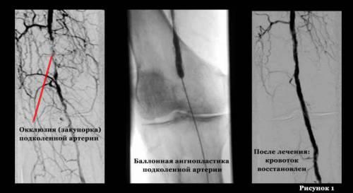 Ангиопластика суженной артерии