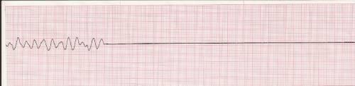 Остановка сердца на ЭКГ
