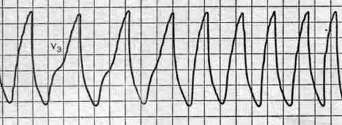 Смерть от остановки сердца