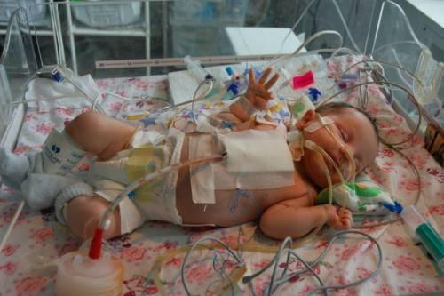 Новорожденный с пороком сердца