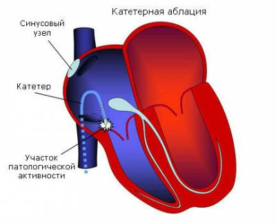 Катетерная абляция сердца