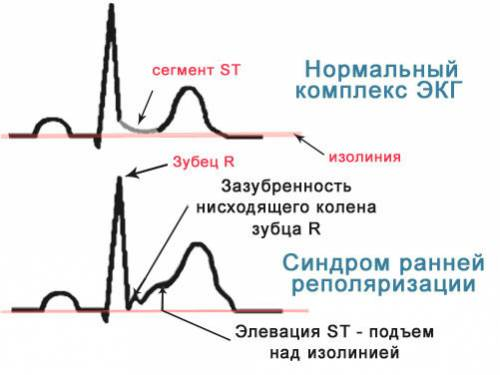 Что такое синдром ранней реполяризации при экг