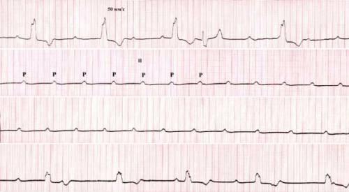 Блокада сердца на ЭКГ
