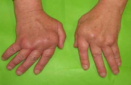 Артрит суставов пальцев кистей рук