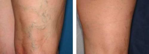 Склеротерапия вен ног