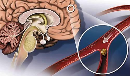 Закупорка сосуда головного мозга