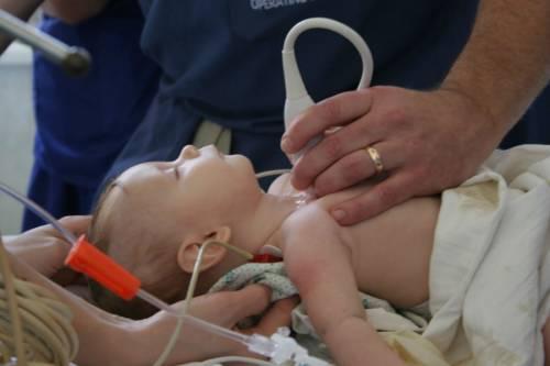 УЗИ сердца у ребенка