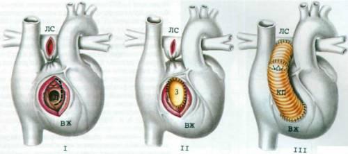 Схема создания искусственного анастомоза правого желудочка и ствола легочной артерии
