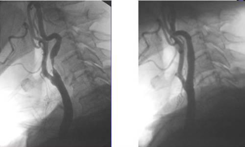 Ангиография при стентировании сонной артерии
