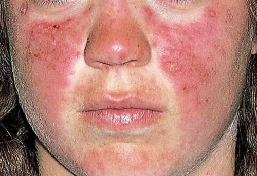 Телеангиоэктазии или красные пятна лечение