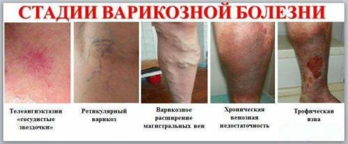 Лечение варикоза без операции