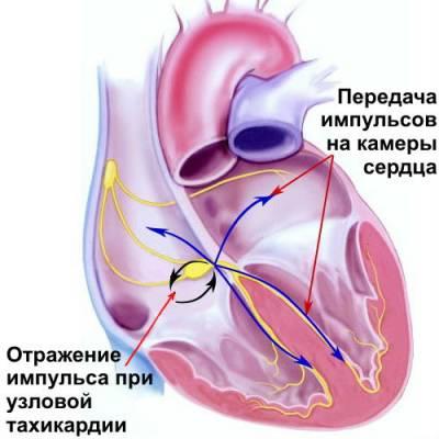 Учащенный пульс и сердцебиение