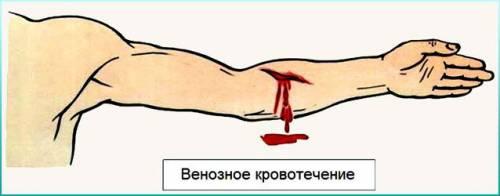 Элементы кровеносной системы человека содержащие венозную кровь