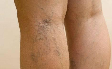 Сосудистая сеточка на ногах лечение