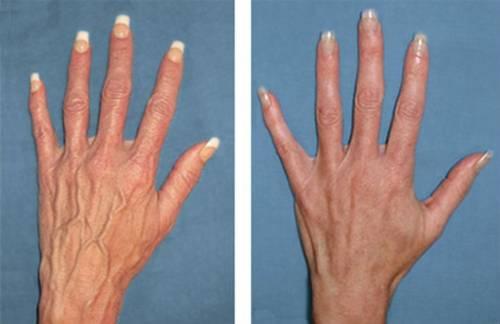 Склеротерапия вен на руках