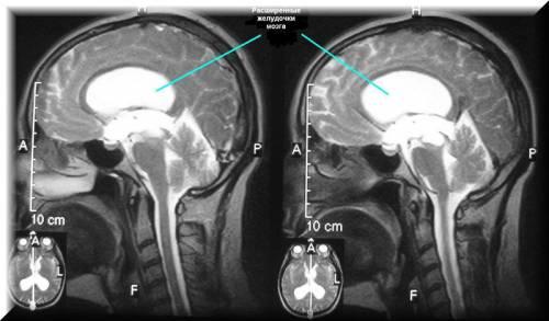 Расширение желудочков мозга