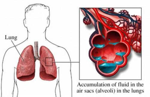 Накопление жидкости в легких