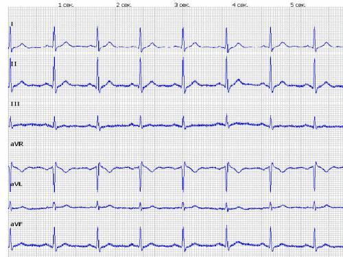Когда нервничаешь почему болит сердце