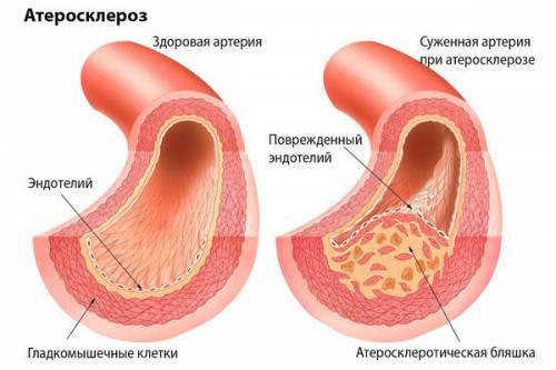 Атеросклероз