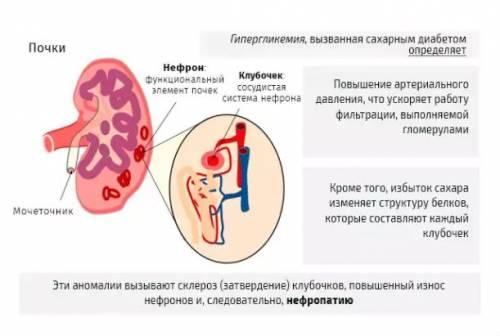 Изменения в почках при диабетической нефропатии