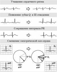 Изменения, характерные для кардиограммы беременных