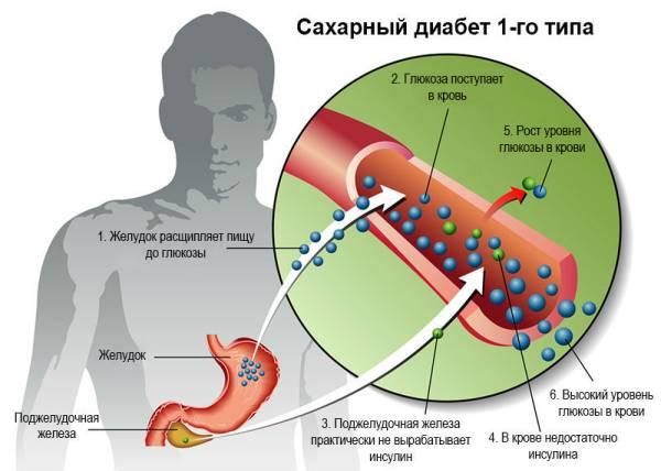 Механизм развития сахарного диабета 1-го типа