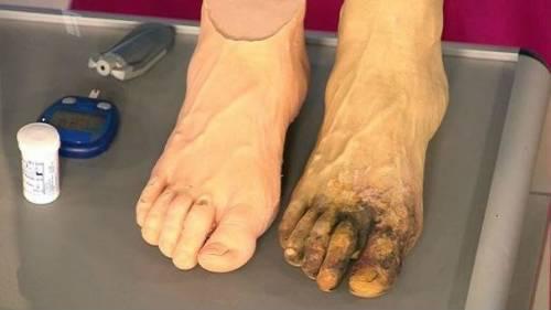 Гангрена ноги при диабете